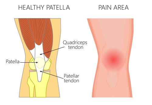 Patello-Femoral Pain Syndrome (Runners Knee)